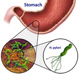 intestinal stomach virus 2014 picture 3