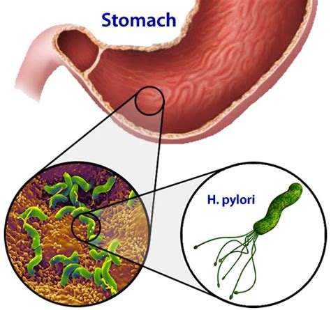 bacterial stomach infection picture 11