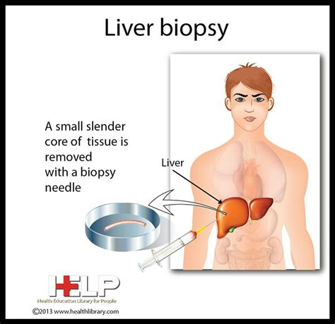 why do they do a liver biopsy picture 1
