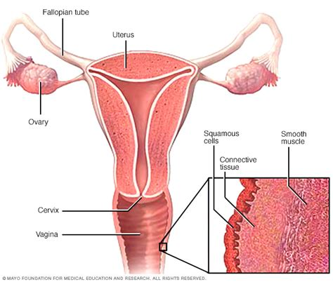 hardening of tissue vaginal yeast infection picture 6