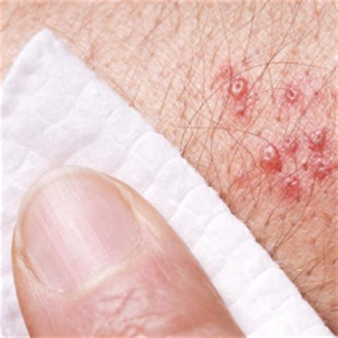 herpes genitalis picture 1