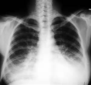 microbacterial pneumonia picture 11