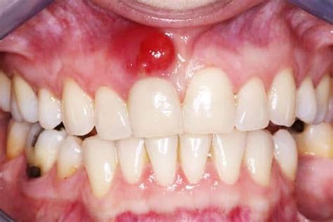 abseste teeth picture 9
