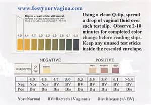 vaginal discharge and colour picture 3