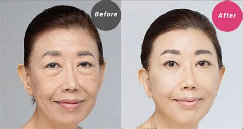 anti aging doctors in nyc area picture 12