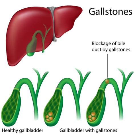 weight loss and gallbladder disease picture 2