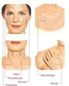 anti ageing treatment picture 6