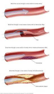 causes of reverse blood flow picture 2