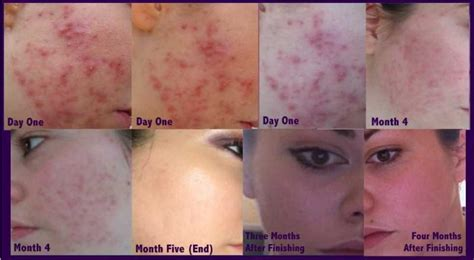ortho evra acne reviews picture 2