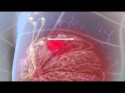 3d breast cancer animation picture 3