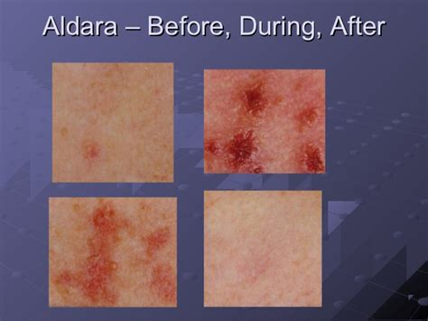 aldara cream side effects pictures picture 6
