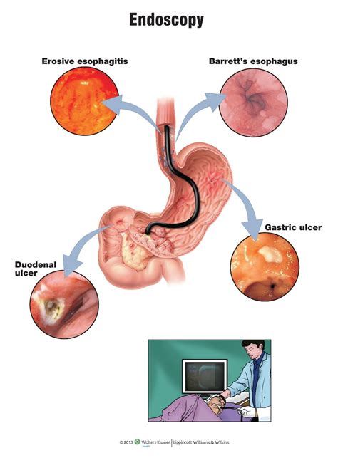 weight loss and colon cancer picture 7