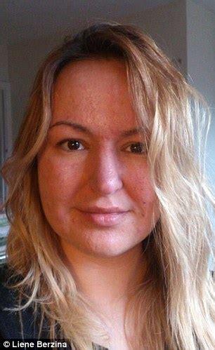 acne female picture 2
