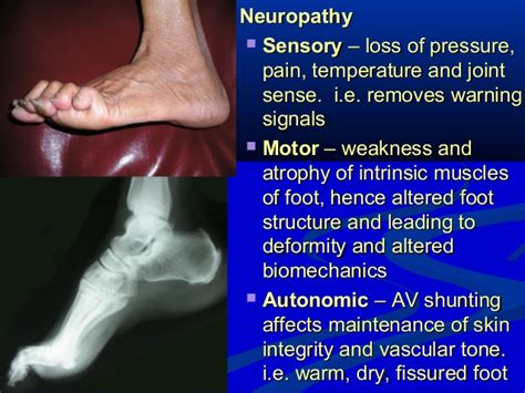 sepsis weakness joint pain picture 17