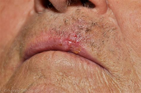 cancer on lips picture 15