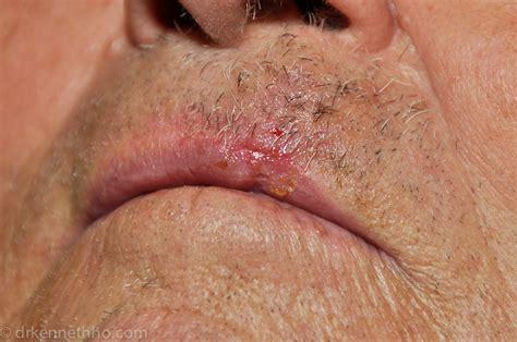 creams for lip cancer picture 11