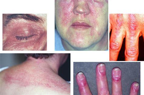 lilacs skin irritation picture 1
