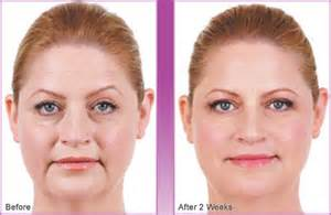 natural breast enhancement picture 7