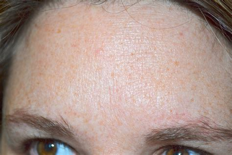 dry skin on 's forehead picture 9