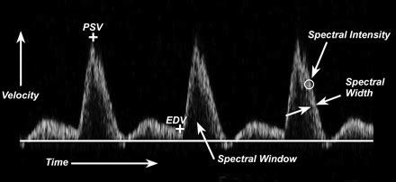 decreased end diastolic flow in infants picture 7