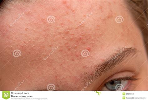 skin care for acne scars picture 11