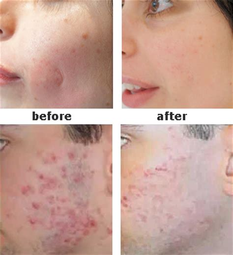 revitol before and after picture 5