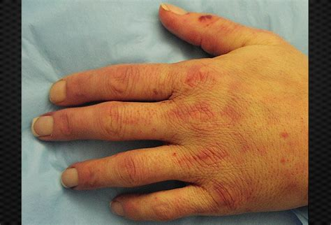 skin lesions of hiv positive patients picture 11