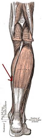 first degree gastrocnemius muscle strain picture 18