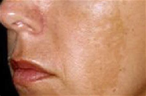 melas for acne picture 10