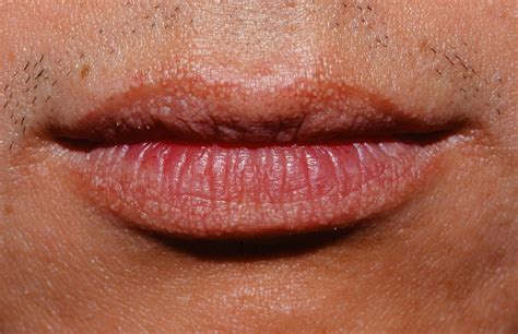 Pictures of fordyce's conditions on the upper lip picture 14