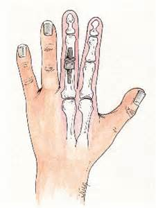 finger joint replacements picture 15