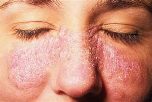 central nervous system injury skin rash picture 1