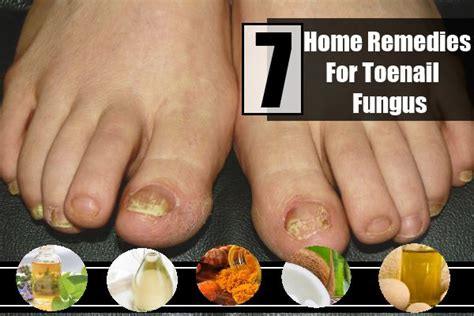 natural remedy for toenail fungus picture 2