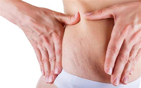 how do you get rid of stretch marks picture 7