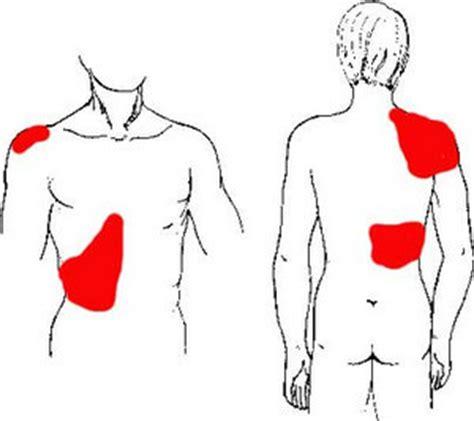 fatty liver symptomes picture 6
