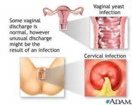 yeast infection inside of vagina feels rough picture 5