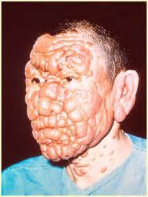medicine of kala daag on mouth picture 11