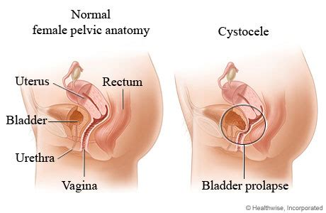 dropped bladder symptoms picture 1