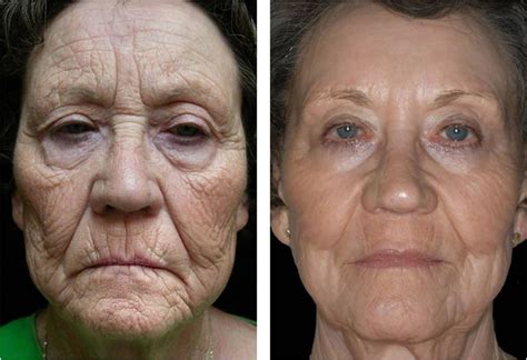 can a co2 total fx full face laser picture 4