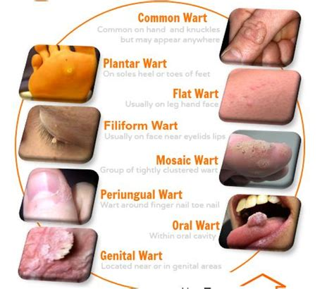 pictures of different kinds warts picture 11