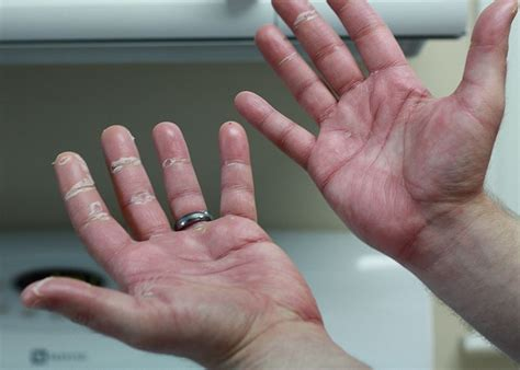 red warts on fingers picture 17