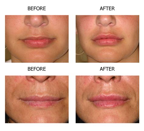 lip injections oregon collagen picture 5