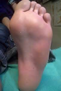 warts on ball of footfoot problems picture 17