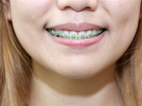 clear teeth brace picture 18