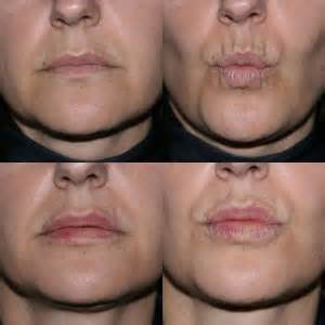 best lip anti aging treatment 2013 reviews picture 5