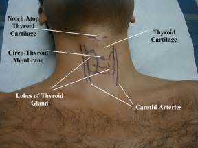 swelling of thyroid and chest wall picture 7