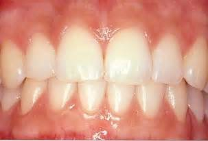 healthy teeth picture 5
