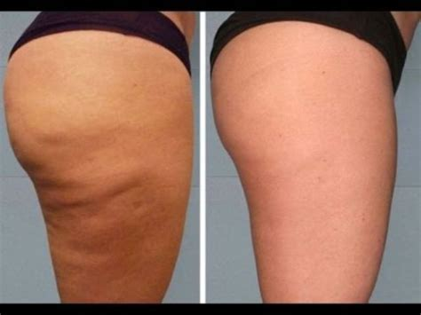 cellulite of the legs picture 10