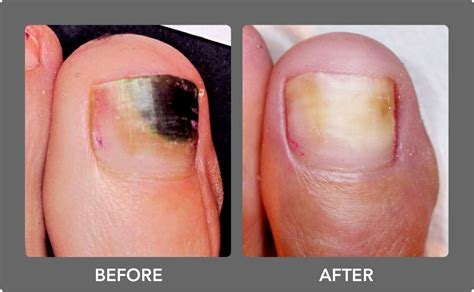 which podiatrist in florida uses patholase for nails picture 11