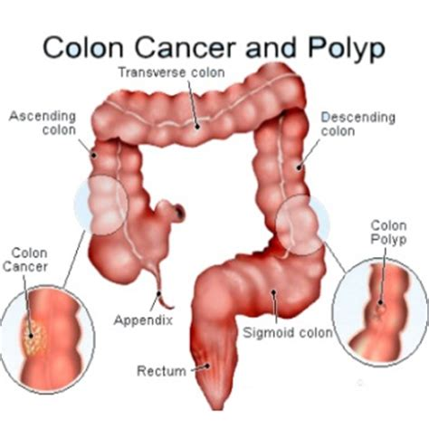 do uterine polyps make colon polyps more likely picture 11